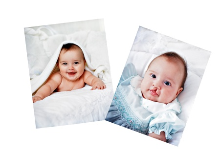 Pictures in a photo album of a baby who had surgery for a cleft lip. Editorial