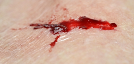 Close up of an injury with blood.