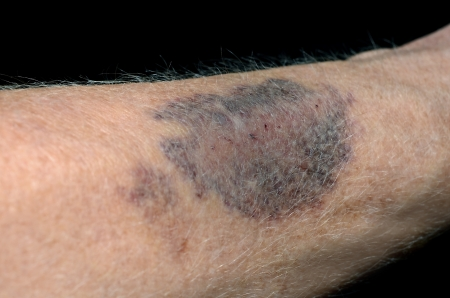 Large Bruise on an arm  Imagens