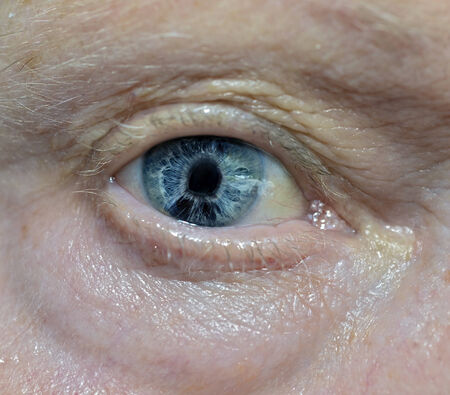 endothelial: Iridocorneal endothelial syndrome (ICE) is a rare eye condition, a group of conditions related to changes in corneal cells and the iris. The syndrome almost always involves cells moving from the cornea to the iris. Loss of cells from the cornea can cause  Stock Photo
