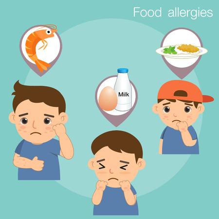 pokrzywka: Alergie pokarmowe Ilustracja