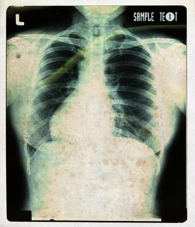 X-rays  old vintage photo