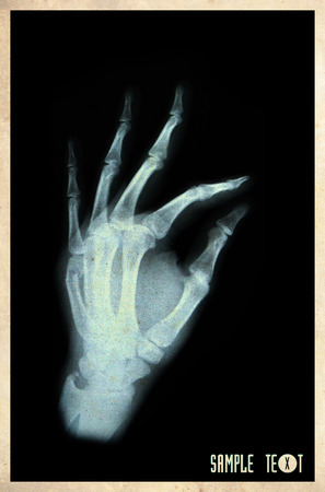 X-rays hand old vintage photo