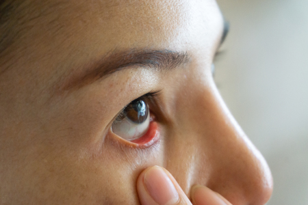 woman red eye dry close up, fatigue, conjunctivitis problems with blood vessels.Medicine healthcare blood capillary allergy eye pain.