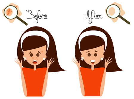 Vector illustrated woman face with acne problem with before and after text.
