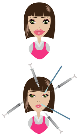 Expert beautician injecting Botulinum toxin in female face. Woman in beauty salon or plastic surgery clinic. Ilustração