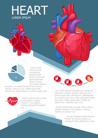 Human heart infographic poster with chart, diagram and icon. The process of atherosclerosis. Heart anatomy medical science infographic with chart, diagram. Vector heart infographic brochure with chart