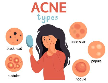 Acne infographic. Unhappy girl struggling with acne,pimples. Skin face irritation problem.