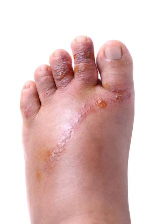クローズ アップは、女性の足に傷します。 写真素材