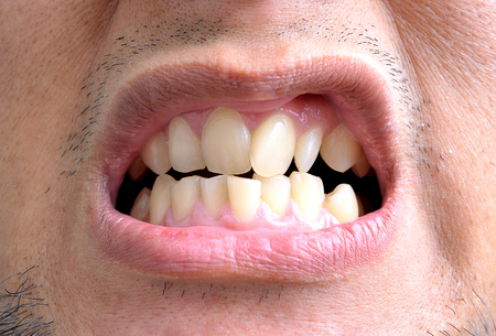 crooked teeth: Close up of really crooked teeth Stock Photo
