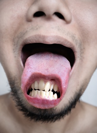 crooked teeth: scary concept, crooked teeth on tongue Stock Photo