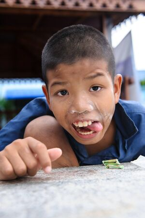 sympathize: CHONBURI, THAILAND - AUGUST 23, 2014: Unidentified disability boy at Ban Kru Boonchoo. Ban Kru Boonchoo is the home for abandoned Down Syndrome kids.