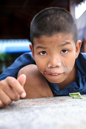 CHONBURI, THAILAND - AUGUST 23, 2014: Unidentified disability boy at Ban Kru Boonchoo. Ban Kru Boonchoo is the home for abandoned Down Syndrome kids.
