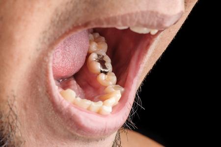 歯科用充填 |歯の充填 |空洞充填 |銀歯 写真素材 - 49814715