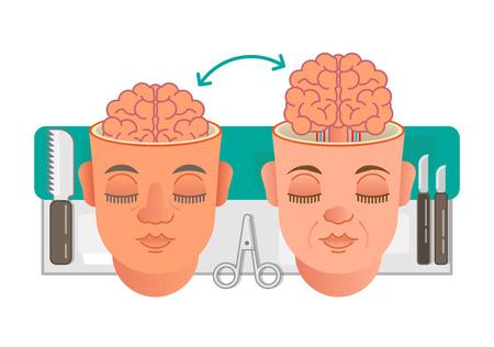 Concepto de trasplante de cerebro Foto de archivo - 86261028