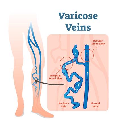 Krampfadern mit unregelmäßiger Durchblutung und gesunden Adern vector Illustrationsdiagrammentwurf. Krampfadern sind Venen, die sich vergrößert und verdreht haben.