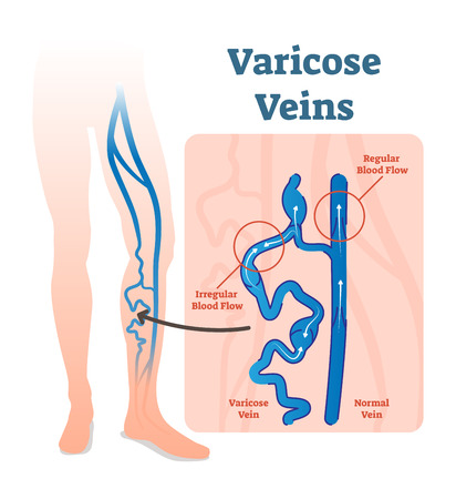 Varicose veins with irregular blood flow and healthy veins vector illustration diagram scheme.  Varicose veins are veins that have become enlarged and twisted. 일러스트