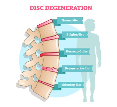 Diagramme vectoriel plat illustration de dégénérescence de disque avec examen de condition - disque bombé, herné, dégénératif et amincissant. Informations médicales éducatives.