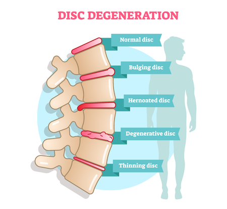 Disc degeneration flat illustration vector diagram with condition examlpes - bulging, hernoated, degenerative and thinning disc. Educational medical information. 일러스트