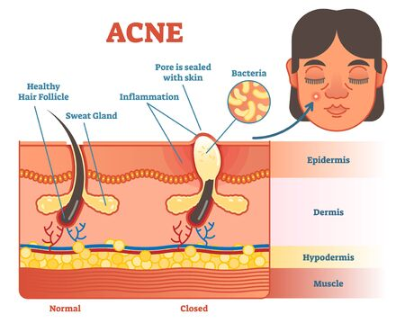 Acne vector diagram illustration with hair, pimple, skin layers and structure. Female face alongside. Educational medical information.