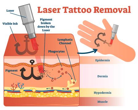 Diagramma dell'illustrazione di vettore di rimozione del tatuaggio del laser. Informazioni visive sulla dermatologia cosmetica. Archivio Fotografico - 93918697