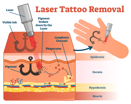 Laser tattoo removal vector illustration diagram. Cosmetic dermatology visual information.
