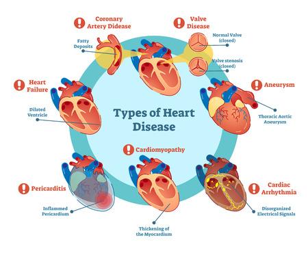 Soorten hartziekteninzameling, vectorillustratiediagram. Educatieve medische informatie.
