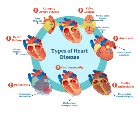 Types of heart disease collection, vector illustration diagram. Educational medical information. Vettoriali
