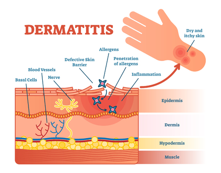 Diagrama da ilustração do vetor liso da dermatite com camadas da pele e movimento do alérgeno. Informação médica educacional.