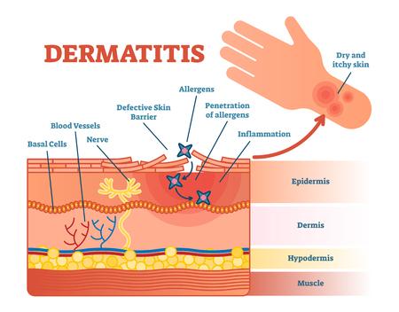 Vektor-Illustrationsdiagramm der Dermatitis flaches mit Hautschichten und Allergenbewegung. Pädagogische medizinische Informationen.