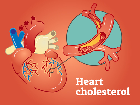 Heart cholesterol concept illustration with heart and blood vessel on red background