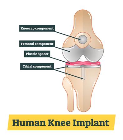 Human Knee Implant vector diagram illustration
