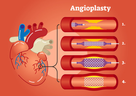 Illustrated scheme showing Angioplasty concept in 4 steps