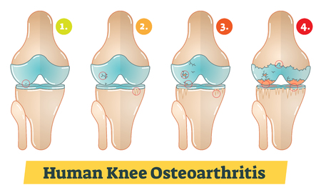 Human Knee Osteoarthritis diagram illustration