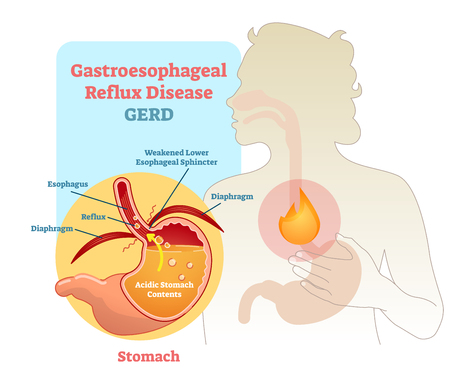 Gastroesophageal Reflux disease diagram scheme, vector illustration poster. Medical educational information. Illustration