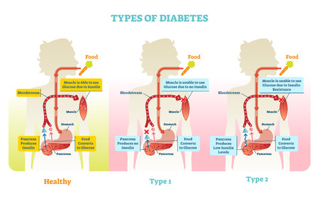 Types of diabetes vector illustration diagram scheme. Medical educational information.