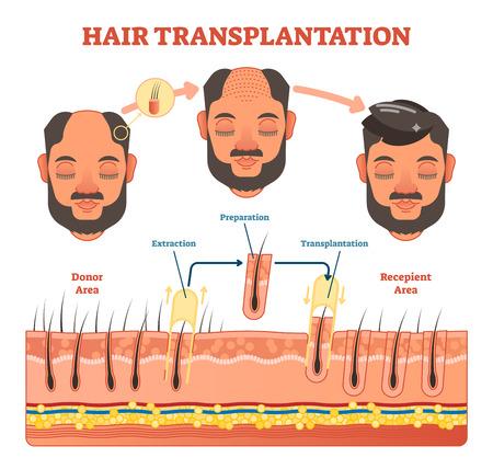 Hair Transplantation procedure diagram with steps, vector illustration scheme.