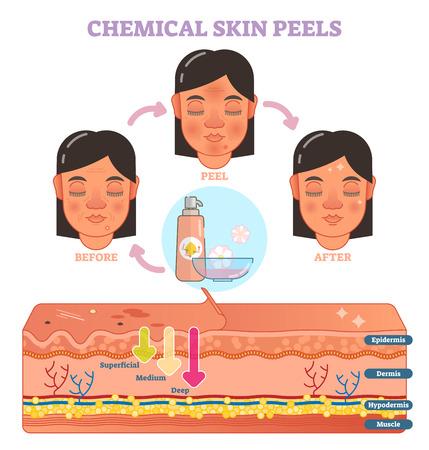 化学皮膚は3ステップと皮膚層スキームを用いてベクター図図を剥離する。