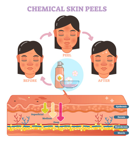 Chemical skin peels vector illustration diagram with 3 steps and skin layer scheme. Фото со стока - 94286119