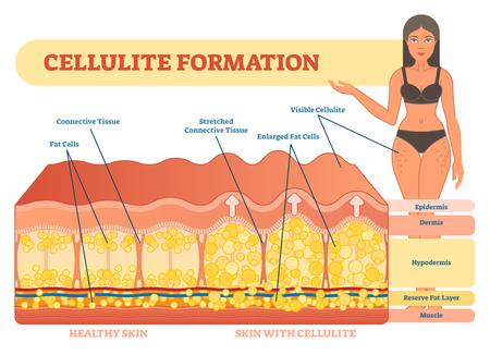 Cellulite-Formationsvektor-Illustrationsdiagramm, medizinisches Informationsschema. Womans Schönheit und Skicare.