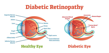Diabetic Retinopathy vector illustration diagram, anatomical scheme. Medical educational information. Zdjęcie Seryjne - 94537219