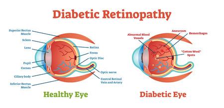 Schemat ilustracji wektorowych retinopatii cukrzycowej, schemat anatomiczny. Medyczne informacje edukacyjne.