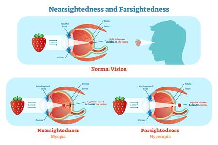 Diagrama da ilustração do vetor do sightedness distante e do sightedness próximo, esquema anatômico. Informação educacional médica.