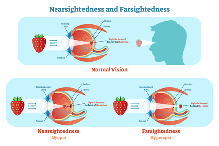 Far Sightedness and Near Sightedness vector illustration diagram, anatomical scheme. Medical educational information. Vectores