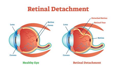 Diagrama da ilustração do vetor do destacamento da retina, esquema anatômico. Informação educacional medicinal. Ilustración de vector