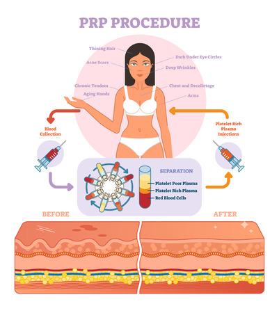 Diagrama gráfico da ilustração do vetor do procedimento de PRP, esquema do procedimento da cosmetologia. Beleza das mulheres e skincare.
