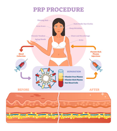 PRP Procedure vector illustration graphic diagram, cosmetology procedure scheme. Women beauty and skincare. Иллюстрация