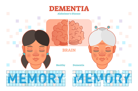 Dementia or alzheimers disease concept vector illustration diagram with young and old woman. Medical information.