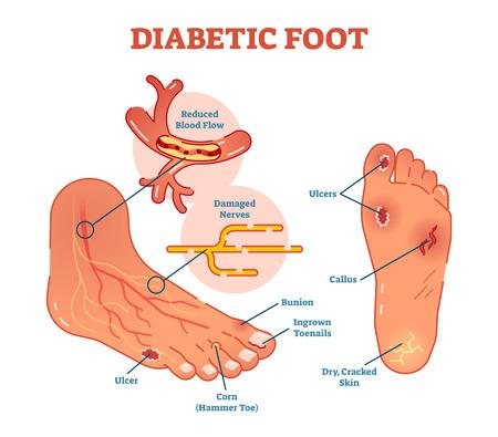 Schemat ilustracji medycznych wektora stopy cukrzycowej z typowymi schorzeniami stopy.