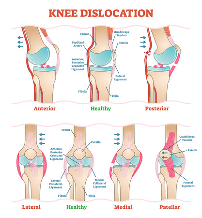 Knee Dislocations - medical vector illustration diagrams. Anatomical knee injury types scheme. Physiotherapy educational information.